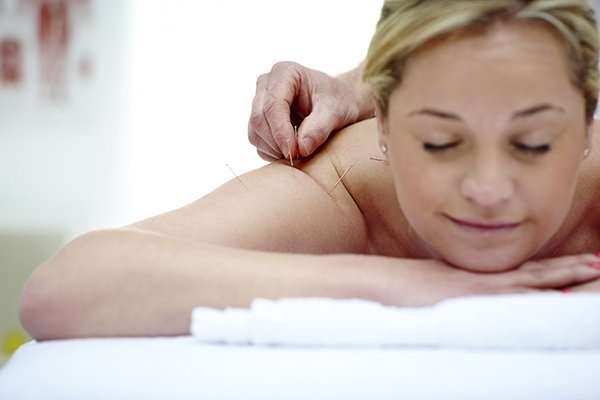 Young beautiful woman in an acupuncture therapy at spa center